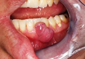 שיניים בהיריון