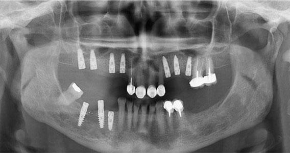 השתלת שיניים בלסת עליונה