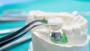 השתלות שיניים ביום אחד או במספר חודשים?